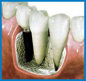 implantologia dental