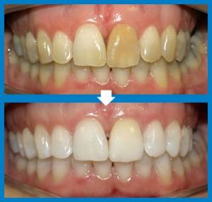 estètica dental