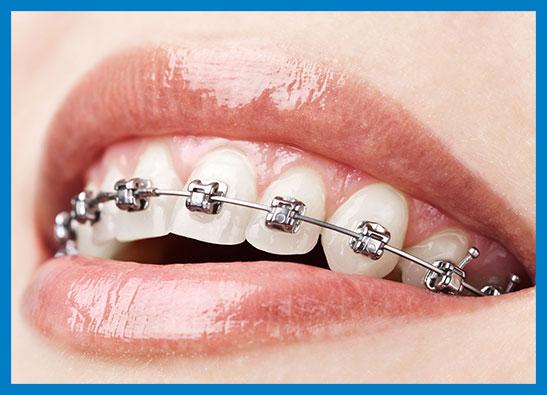 ortodoncia_03_ok